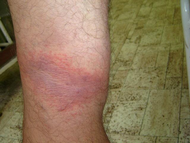 vörös foltok a lábszárakon fotó