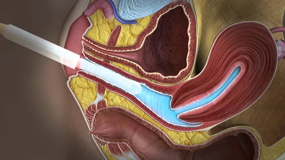 Hüvelyi ultrahang