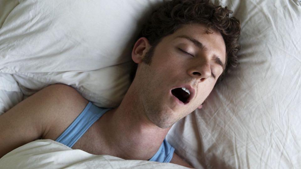 Alvási apnoé
