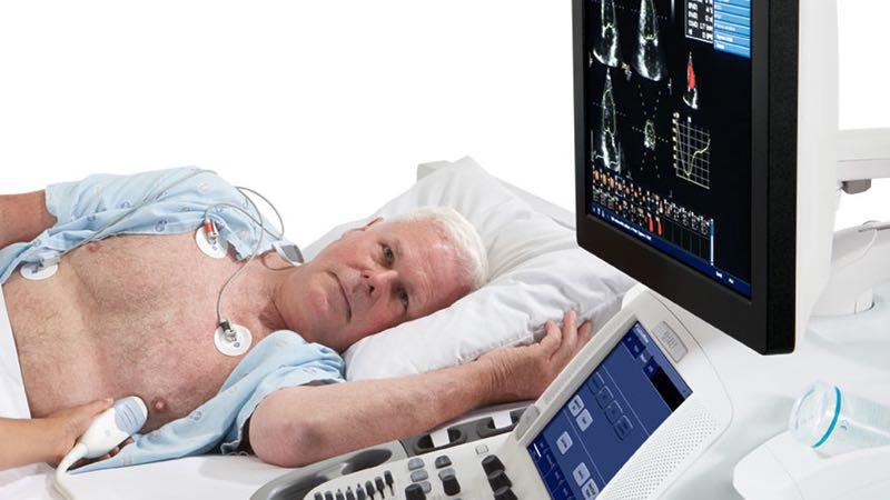 Szív ultrahang vizsgálat