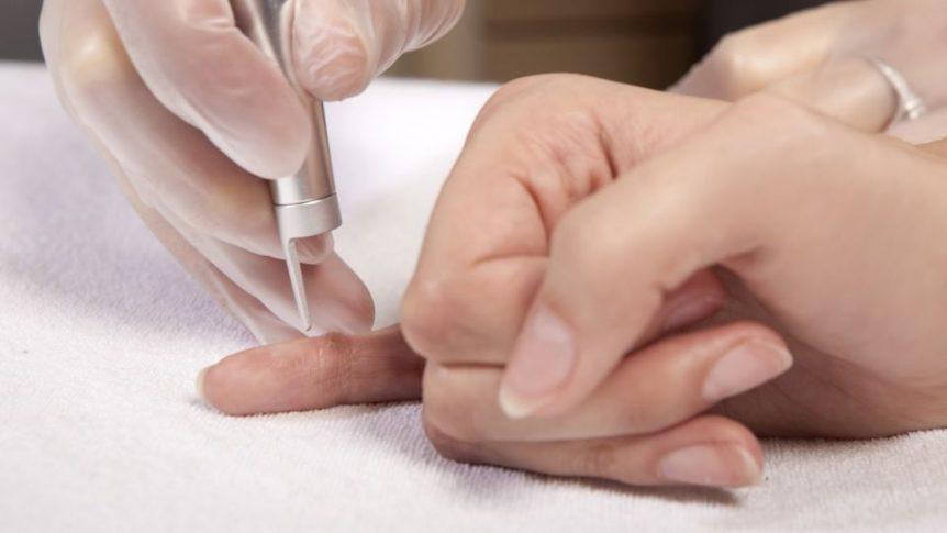 Bőrnövedékek eltávolítása lézerrel